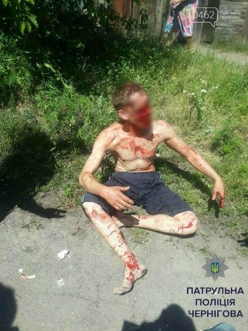 Неадекватный черниговец бросался камнями в прохожих и угрожал ножом, фото-1