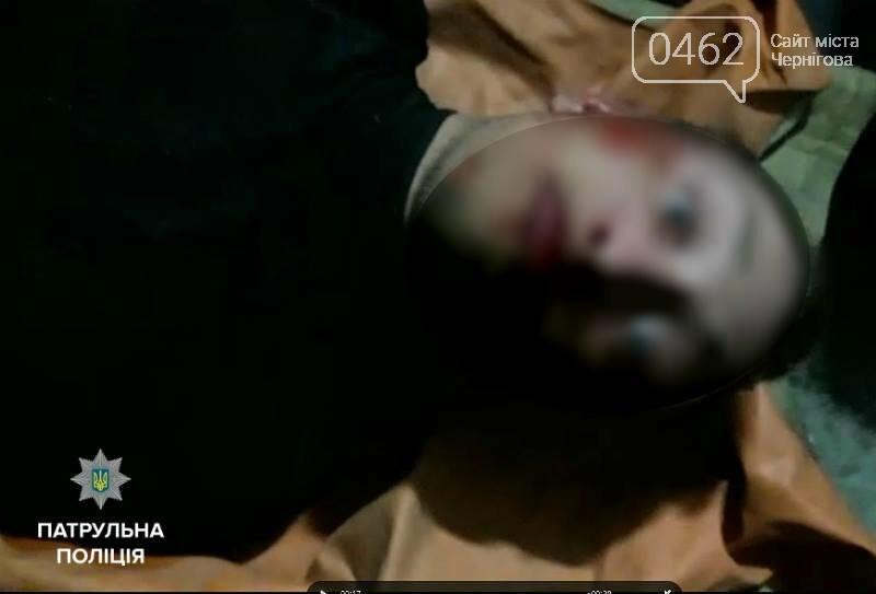 Наркоман в Чернигове напал со шприцом на полицейского, фото-1