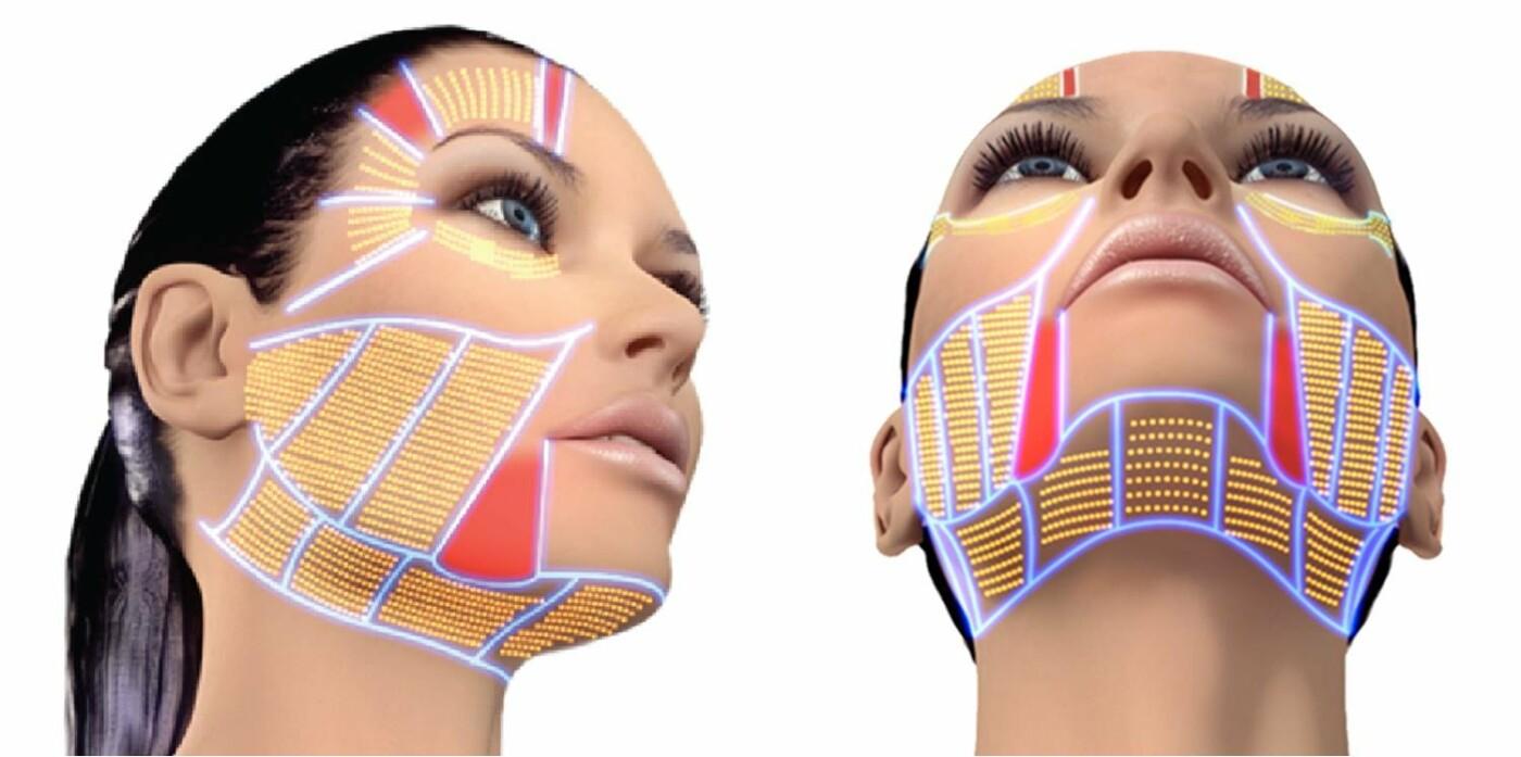 SMAS-лифтинг – революция в сфере безоперационной подтяжки кожи, фото-2
