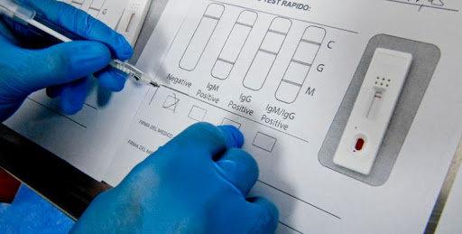 Тести на коронавірус у Чернігові: де і за скільки?, фото-1